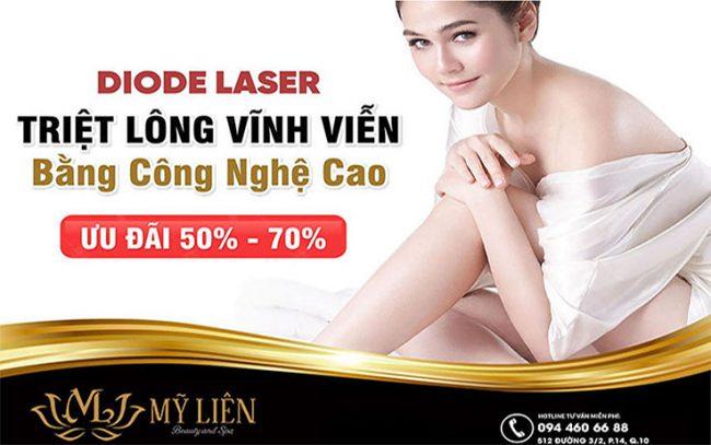 triệt lông laser